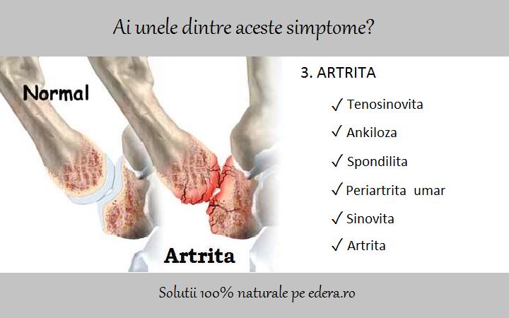 durere articulară termen medical boala articulațiilor mici