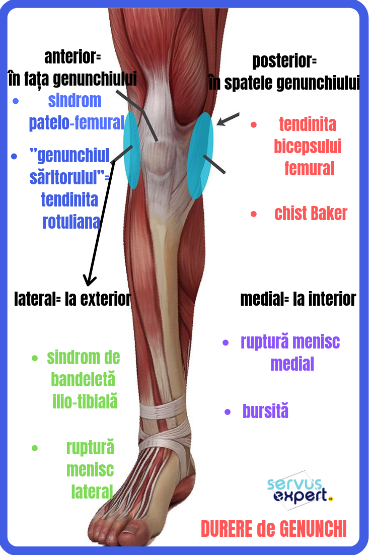 Tendinita genunchiului