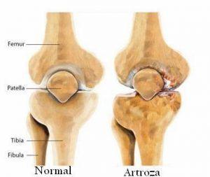 după chimioterapie durere în mușchi și articulații articulațiile membrelor brațelor și picioarelor doare