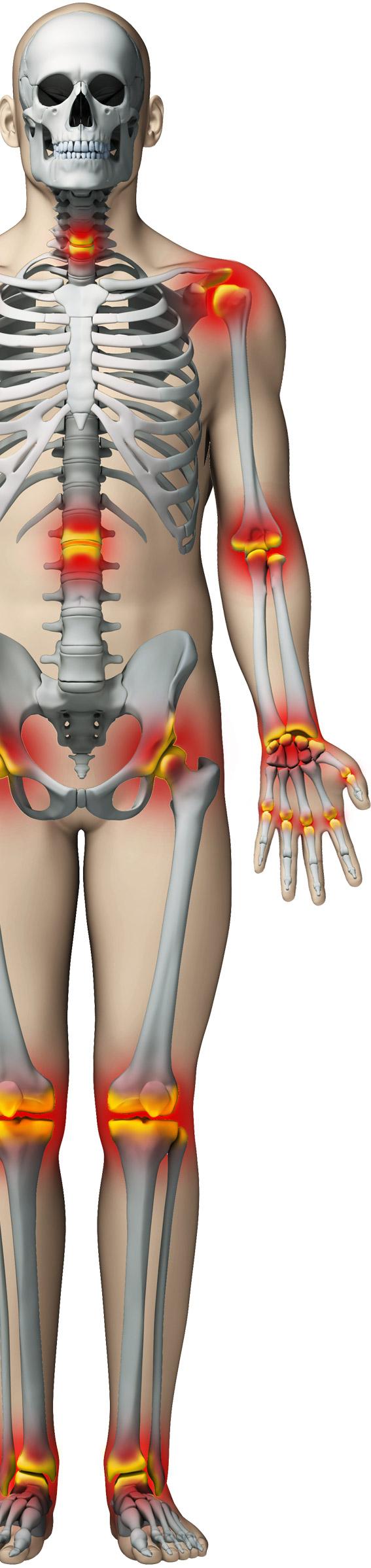 dureri de spate încremenesc articulațiile