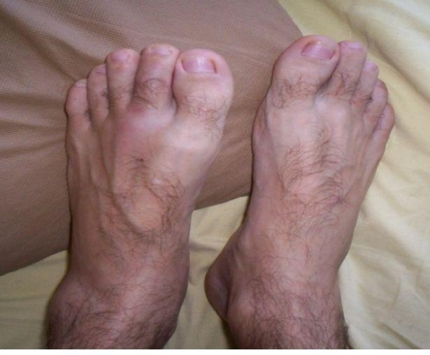artrita nespecifică a gleznei tratamentul comun al artrozei în străinătate