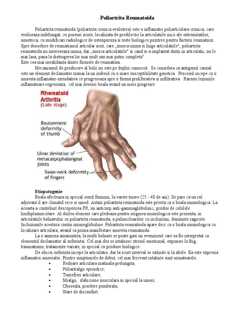 examen comun pentru artrita reumatoidă vânturi și boli articulare