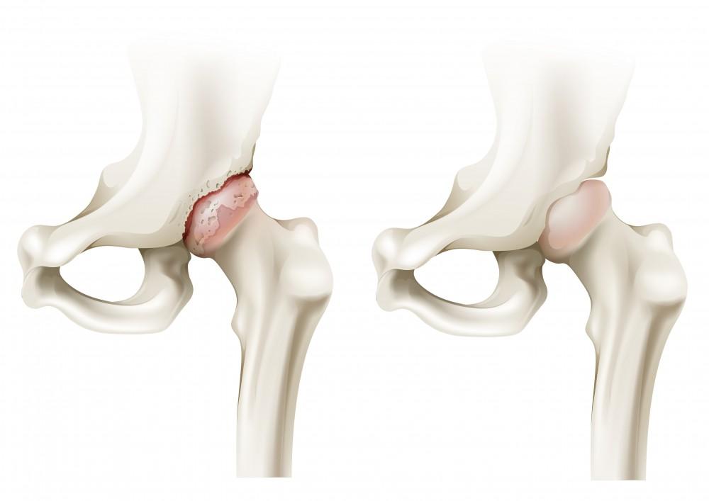 o injecție pentru durere în articulația cotului injectând medicamente în articulația șoldului