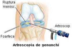 tratarea meniscului genunchiului nou în tratamentul articular