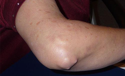 artrita reumatoidă a simptomelor articulațiilor cotului