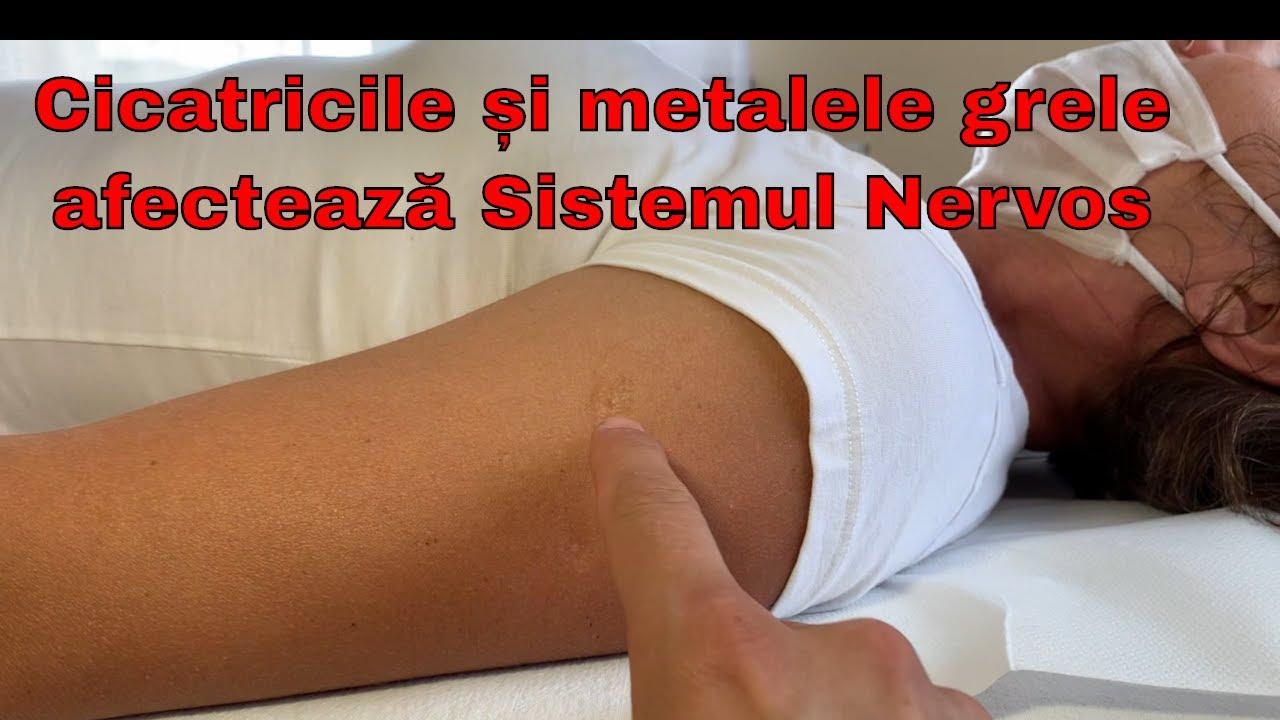 hemlock și dureri articulare tratamentul articulației false a umărului