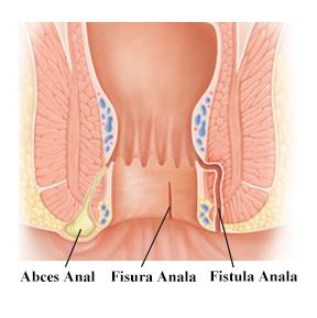 artroza articulațiilor degetelor de la picior lovituri de tratament articulare