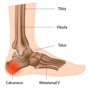 tratamentul limfostazei genunchiului
