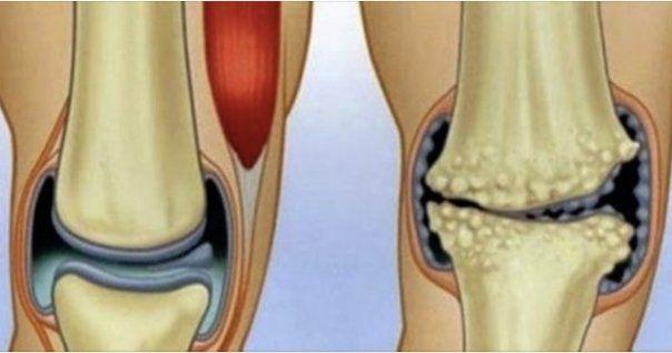 glucozamină cu condroitină din Arkhangelsk dureri acute la nivelul articulațiilor gleznei