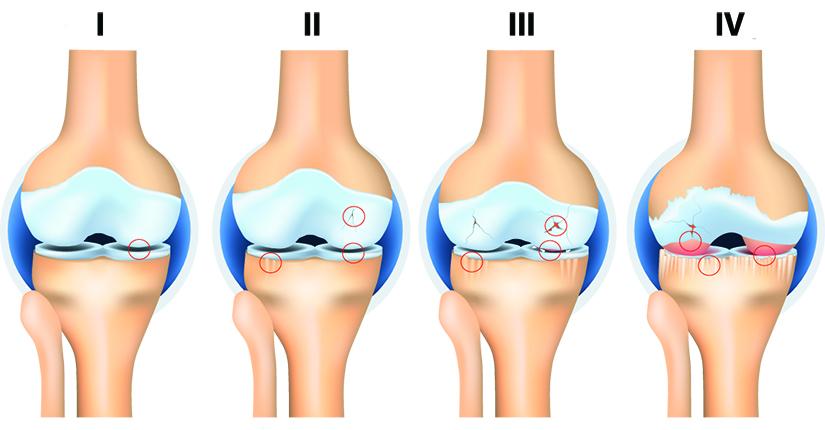 artroza cronică a genunchiului