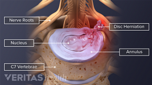 artroza articulațiilor necovertrale c5 c6 diprospan în tratamentul artrozei umărului
