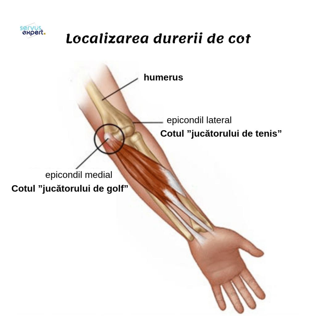 durerea articulară a cotului crampe mâinile fracția de tratament articular