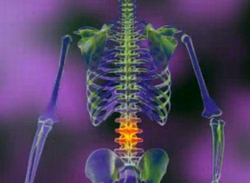 tratează artroza coloanei vertebrale cum ameliora durerea cu bursita articulației șoldului