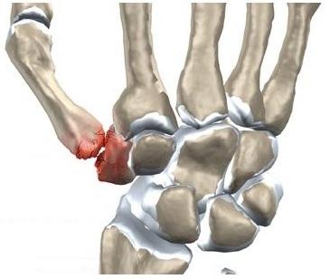 dureri articulare la brațe și umeri