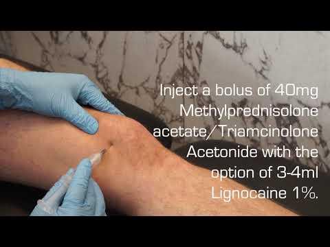 luxația articulațiilor degetelor tratamentului mâinilor intramuscular cu dureri articulare