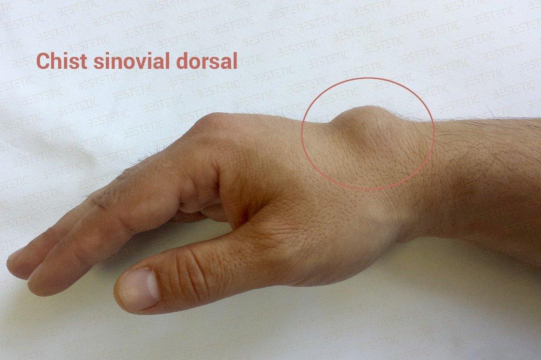 artroză bursită tratament articulația genunchiului tratamentul muzical al articulațiilor