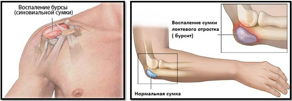 articulațiile rănesc una sau două