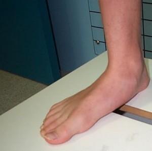 picioare plate și durere în articulațiile piciorului artrita pe 1 deget de la picior