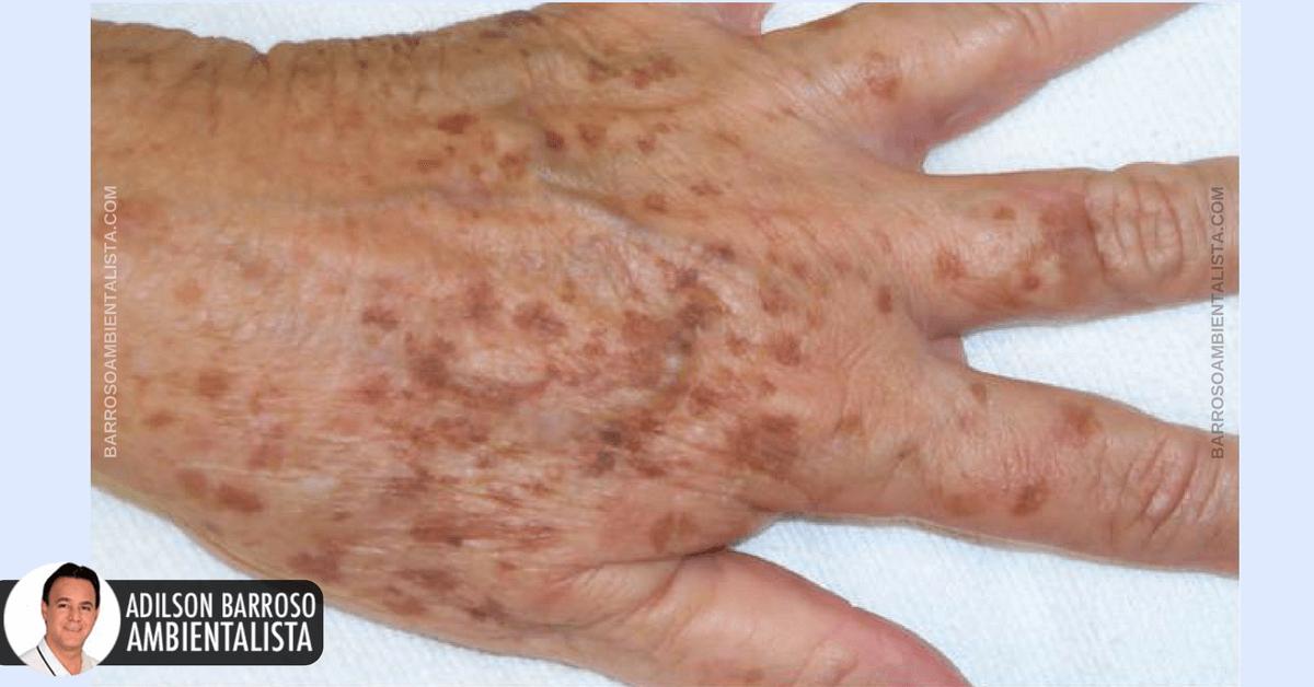 dureri articulare seara zdruncinați articulațiile în genunchi fără durere