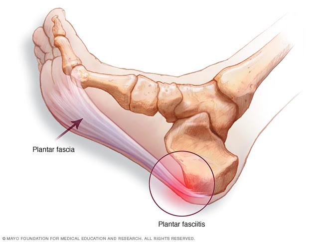 articulațiilor și boala lor