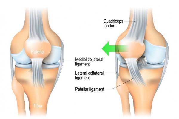 de ce zboară articulația genunchiului