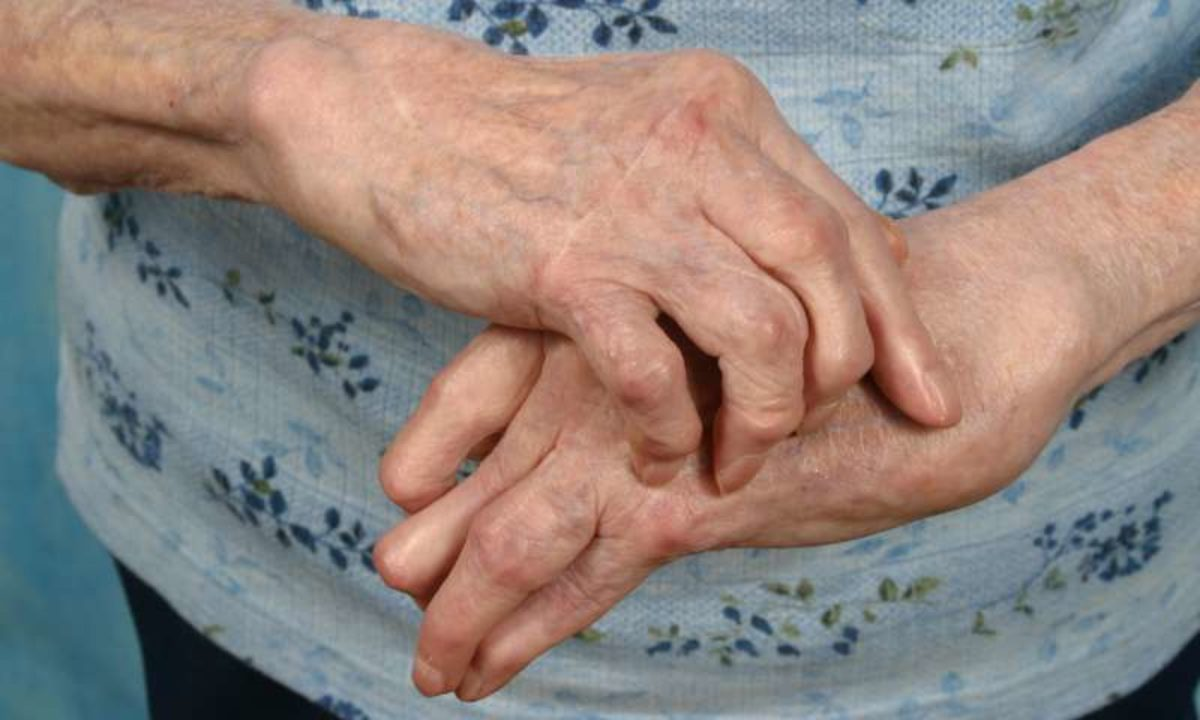Boala Reiter Boala articulară artroza deformantă a articulației șoldului cu 1-2 grade