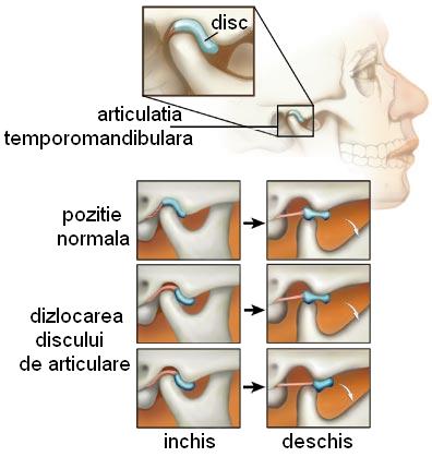 durere dureroasă în articulația gurii