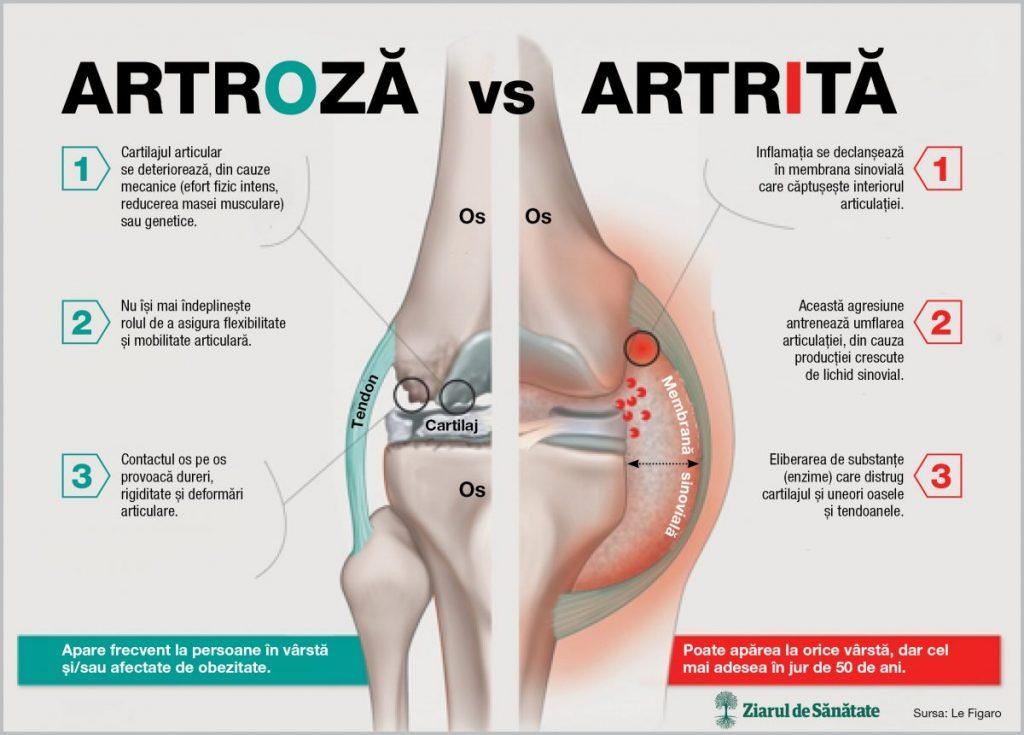 articulații de artrită frecventă tratament articular în toamnă