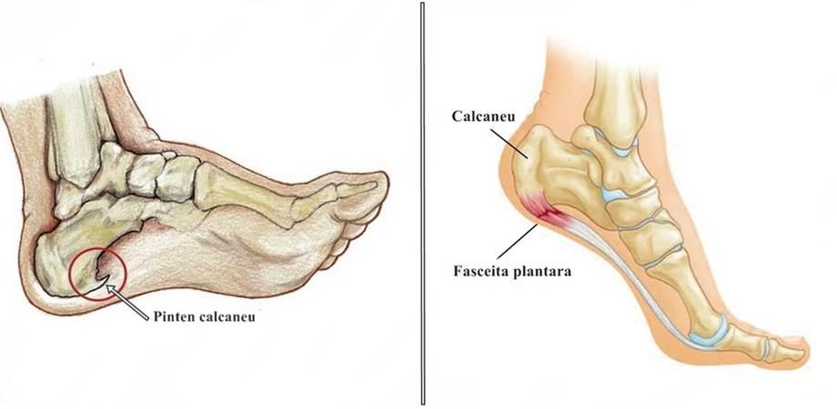 dureri articulare de călcâi la spate