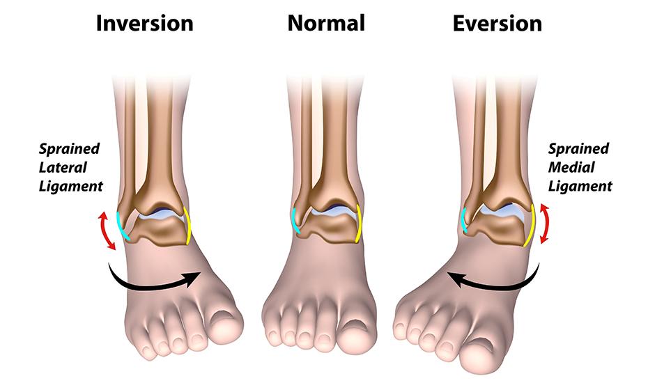 boli ale articulației piciorului și gleznei sisteme de alimentare glucosamină condroitină