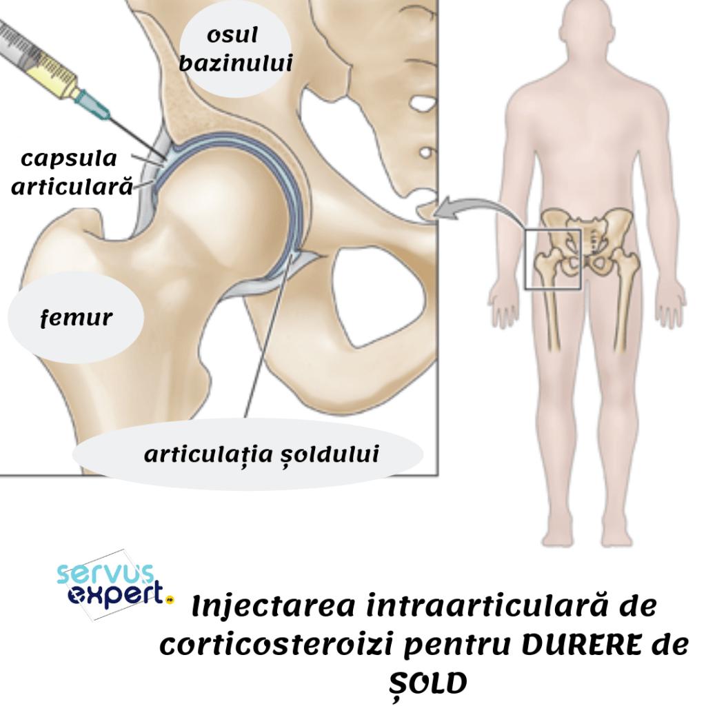 medicamente injectate în articulație