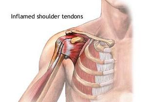 afecțiuni ale ligamentului și tendonului articulației umărului recenzii pentru tratamentul artrozei genunchiului