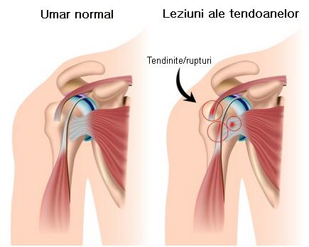 afecțiuni ale ligamentului și tendonului articulației umărului preparate vasculare pentru artroza genunchiului