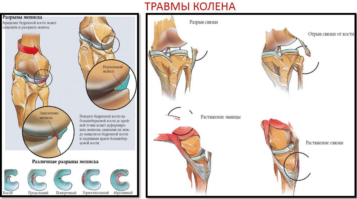 articulația genunchiului se bat