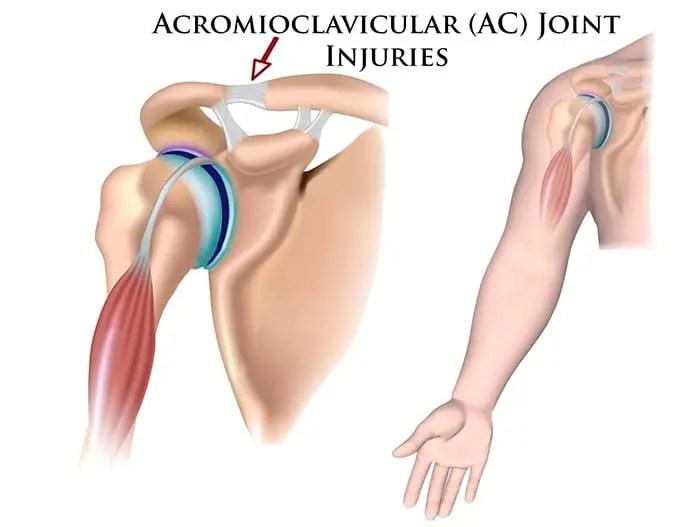 articulația umflată pe braț după rănire complicații după o leziune articulară