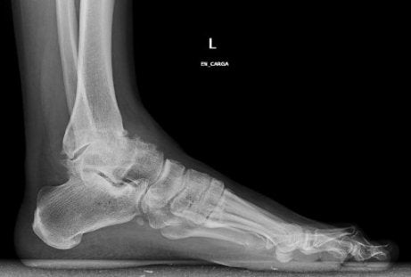 cel mai bun agent antiinflamator pentru articulații articulația genunchiului doare ceea ce ar putea fi