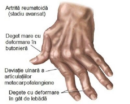 tipuri de dureri articulare