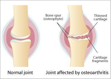 artroza articulațiilor necovertrale c5 c6 sportivi cu condroitină glucozamină