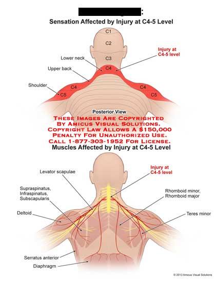 artroza articulațiilor necovertrale c5 c6 deteriorarea meniscului interior al articulației genunchiului stâng