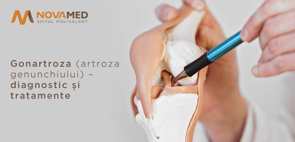 artroza deformantă posttraumatică a articulației gleznei 3 grade