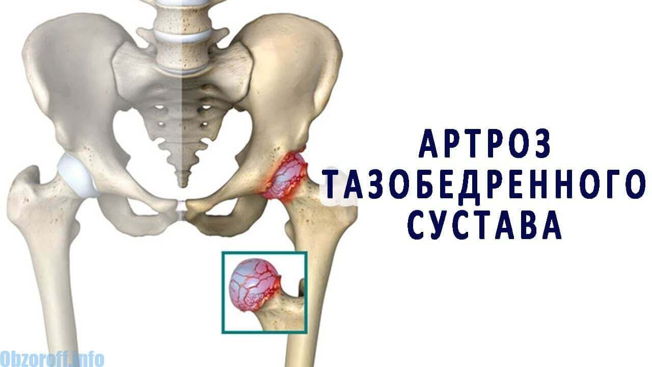 tratamentul artrozei calendula