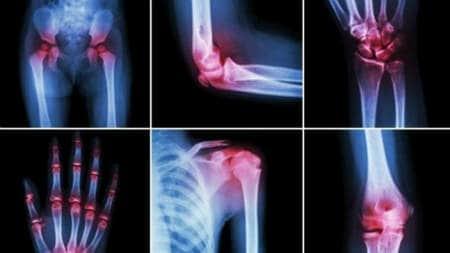 antiinflamatoare pentru numele osteochondrozei