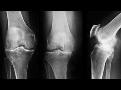 artroza gradului 3 al tratamentului articulației genunchiului