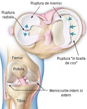menisc leziuni ale simptomelor articulației genunchiului