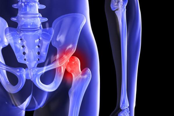 osteocondroza de 3 grade a articulației șoldului durere și roșeață a gleznei