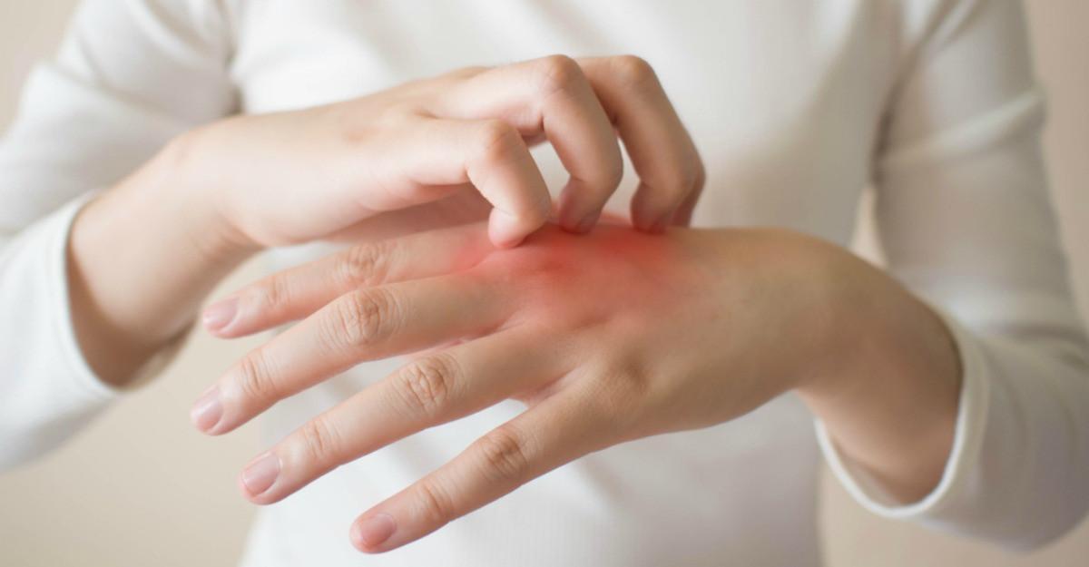 artrita traumatică a gleznei ameliorați edemul gleznei