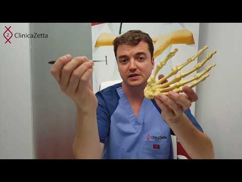 Crunch tratamentul articulațiilor umărului