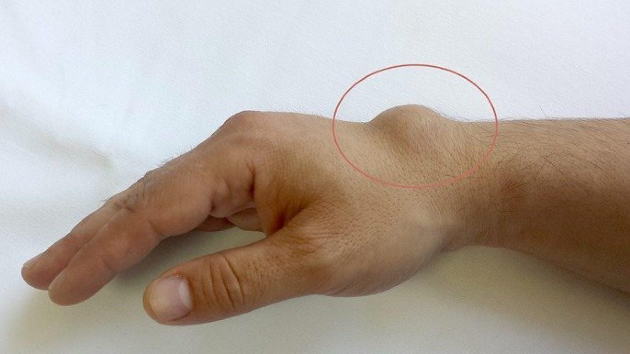 umflarea articulației pe braț și doare