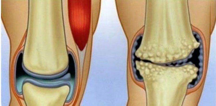 durere acută la nivelul articulațiilor membrelor complicații ale afectării articulației gleznei