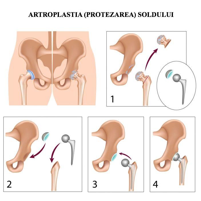 articulația inghinală doare remediu pentru umflarea articulației